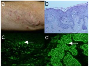 Choroba Duhringa (opryszczkowate zapalenie skóry, skórna forma celiakii)
