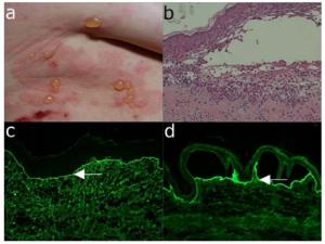 Nabyte pęcherzowe oddzielanie się naskórka (Epidermolysis bullosa acquisita, EBA)